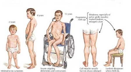 دیستروفی عضلانی چیست