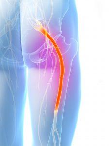 فیزیوتراپی کشیدگی درد کمر به ران پا یا درد رادیکولار