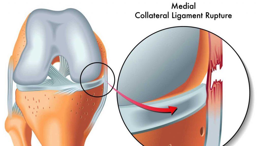 آسیب رباط طرفی داخلی (MCL)
