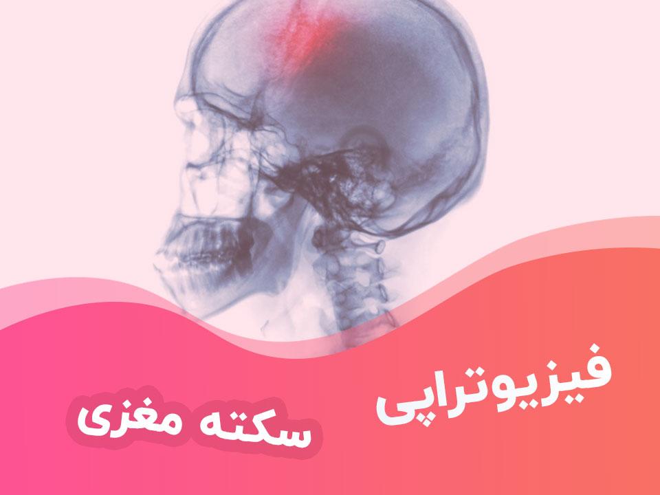 فیزیوتراپی سکته مغزی