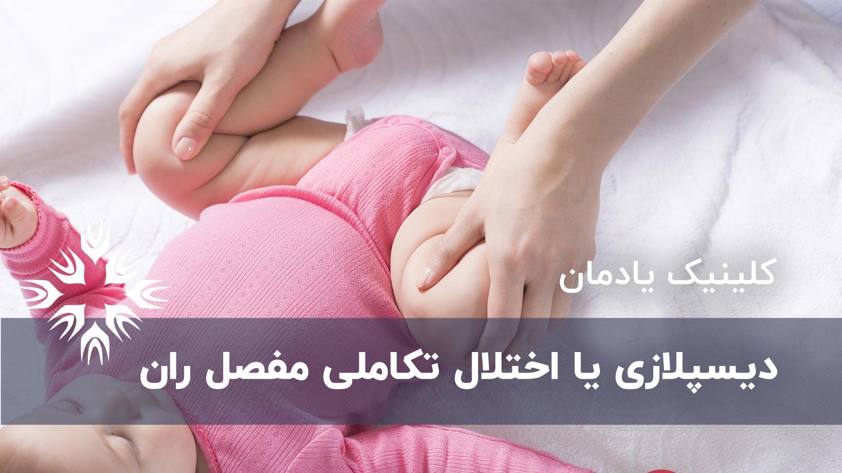 دیسپلازی یا اختلال تکاملی مفصل ران