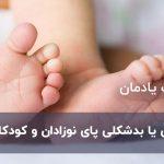پا چنبری یا بدشکلی پای نوزادان و کودکان