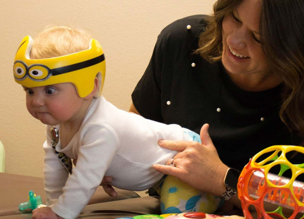 فیزیوتراپی برای بدشکلی سر کودک