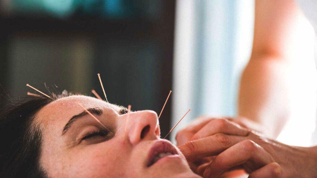 طب سوزنی برای جوانسازی صورت