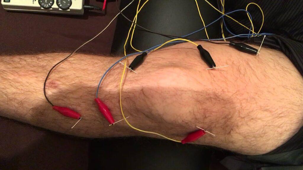 طب سوزنی الکتریکی