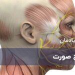 درمان فلج صورت ، سینکینزی و سایر اختلالات
